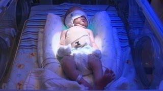 Download Drug-Dependent Infants Detox at Tenn. NICU Video