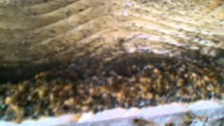 Download The sickest most infested Bed Bug job in Syracuse NY Video