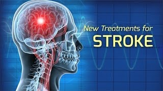 Download Innovations in the Treatment of Stroke - Health Matters Video