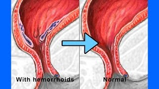 Download How To Get Rid Of Hemorrhoids in just 2 days - How To Shrink Hemorrhoids Fast and Naturally? Video