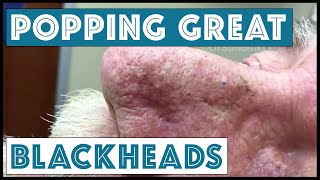 Download Popping GREAT blackheads after Mohs skin cancer surgery Video