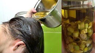 Download Chữa tóc rụng kinh niên SAU 1 LẦN GỘI MỌC NHƯ CỎ SAU MƯA đảm bảo hiệu quả Video