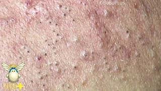 Download Forehead Blackheads, Cystic Acne And Pimples Extraction On Face Acne Treatment 724078! Video