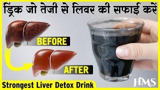 Download लीवर की सारी गंदगी खत्म करें / बीमारियों से छुटकारा पायें How to Cleanse Your Liver Video