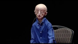 Download My philosophy for a happy life | Sam Berns | TEDxMidAtlantic Video
