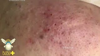 Download Cystic Acne, Blackheads And Pimples Extraction On Face Acne Treatment 62391! Video