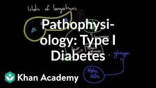Download Pathophysiology - Type I diabetes | Endocrine system diseases | NCLEX-RN | Khan Academy Video