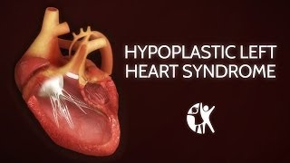 Download Hypoplastic Left Heart Syndrome (HLHS) Video