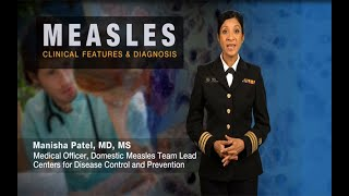 Download Measles Clinical Features and Diagnosis Video