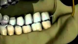 Download Técnica de anestesia mandibular Akinosi Video