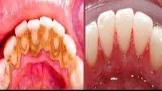 Download THIS NOT A JOKE REMOVE DENTAL PLAQUE IN 2 MINUTES WITHOUT GOING TO THE DENTIST Video