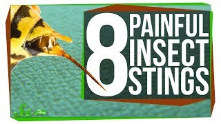 Download 8 of the Worst Stinging Insects Video