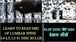 Download Learn to Read MRI of Slip Disc-How to read MRI of Lumbar Spine disc bulge-Herniated Disc MRI L4-L5 Video