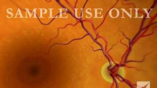 Download Eye: Retinal Artery Damage Video