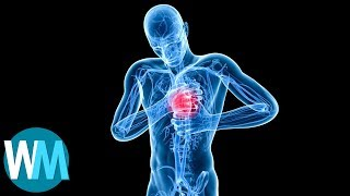 Download Top 5 Leading Causes of Death in Men Video