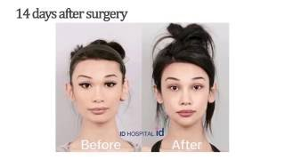 Download American girl experiencing plastic surgery in Korea and the result is unbelievable! Video