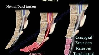 Download Coccyx, Tailbone pain /coccydynia - Everything You Need To Know - Dr. Nabil Ebraheim Video