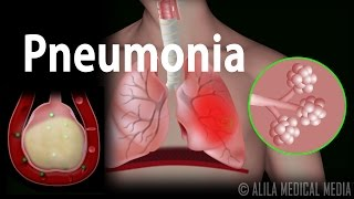 Download Pneumonia, Animation Video