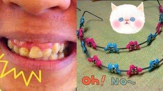 Download จัดฟันคิ๊ตตี้ จัดฟันมิ๊กกี้ (fashion braces) Video
