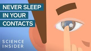 Download What Happens When You Sleep In Your Contact Lenses Video