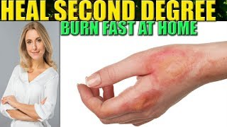 Download How To Heal A Burn Fast: 2nd Degree Burns Wound Care Home Remedies Video