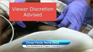 Download Dorsal Penile Nerve Block (Viewer Discretion Advised) Video