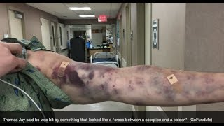 Download Prophecy Alert: ″Scorpion Locust″ Revelation Plague Bites Man In Arizona? Video