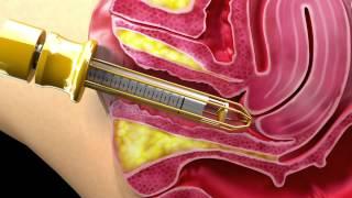 Download The Non-Surgical Laser Vaginal Rejuvenation Solution... Video
