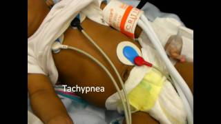 Download Infant Respiratory Distress Signs Video