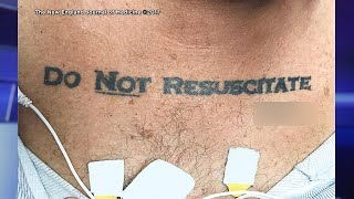 Download How Hospital Reacted to Man's 'Do Not Resuscitate' Tattoo Video