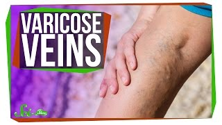 Download Why Do I Have Varicose Veins? Video