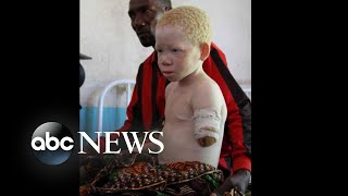 Download Tanzanian children lost limbs in brutal attacks for having albinism: Part 1 Video