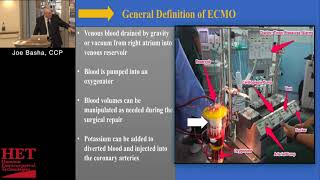 Download Extracorporeal Membrane Oxygenation Therapy (ECMO Training) Extracorporeal life support Joseph Basha Video