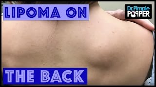 Download A Lipoma Removal in a Nervous Patient Video