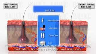 Download Different types of hair loss and the treatment methods Video