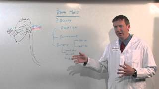 Download Treatments for Kidney Tumors - Kenneth Nepple, MD Video