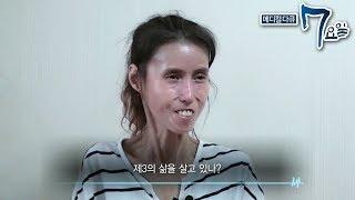 Download 메디컬 다큐 7요일 - 내 딸 수정이- 신경섬유종 외 #002 Video