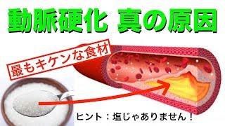 Download 高血圧に最もキケンな食材!動脈硬化(カチコチ血管)を予防する3ポイント Video