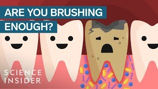 Download Here's What Happens If You Stopped Brushing Your Teeth Video
