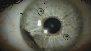 Download Rare eye cancer affects 2 groups of people in N.C. and Alabama Video