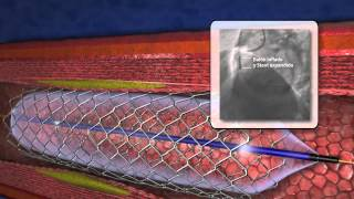 Download Angioplastia coronaria Video