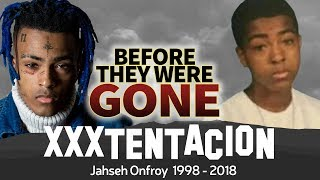 Download XXXTENTACION | Before They Were GONE | Jahseh Onfroy Biography Video