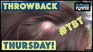 Download Reminiscing with Dr. Pimple Popper: TBT Pt.14 Video