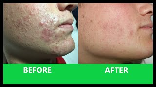 Download Ángel's Acne Treatment: Ten Weeks On Video