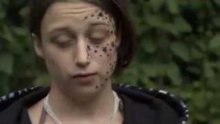 Download [SUBTITLED] Girl wakes up with 56 stars tattooed on her face Video