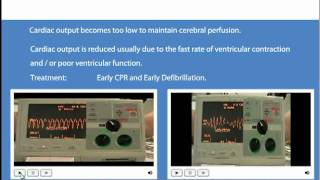 Download Advanced Life Support Shockable and Non Shockable Rhythms. Video
