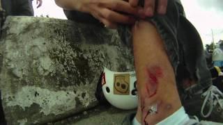 Download Skate[Slate] Winter Jam: Wolfgang Coleman vs Patrick Switzer Video