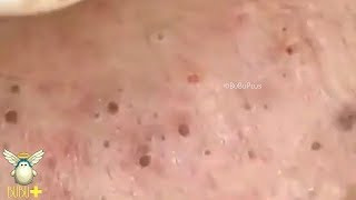 Download Many Blackheads Extraction On Face Acne Treatment 271092! Video