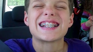 Download Caleb Gets Braces (WK 121.3) Video