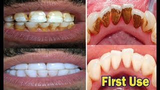 Download In just 2 Minutes - Turn Yellow Teeth to Pearl White With This Kitchen Ingredients amazing Teeth Video
